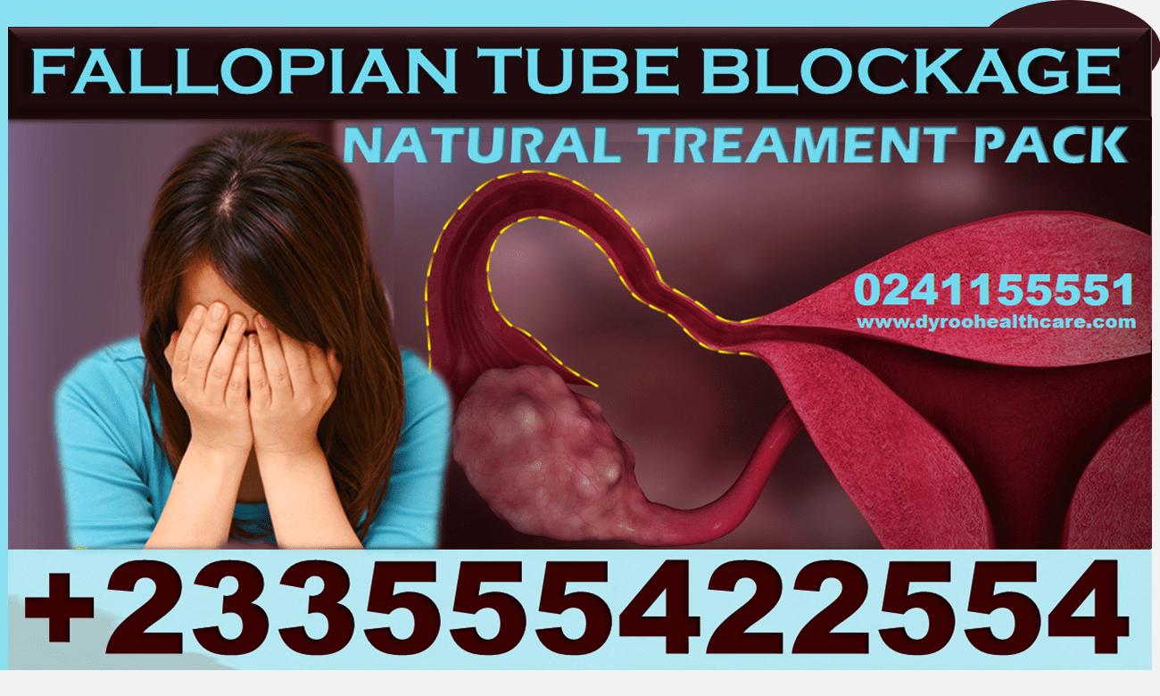 FALLOPIAN TUBES BLOCKAGE TREATMENT PACK