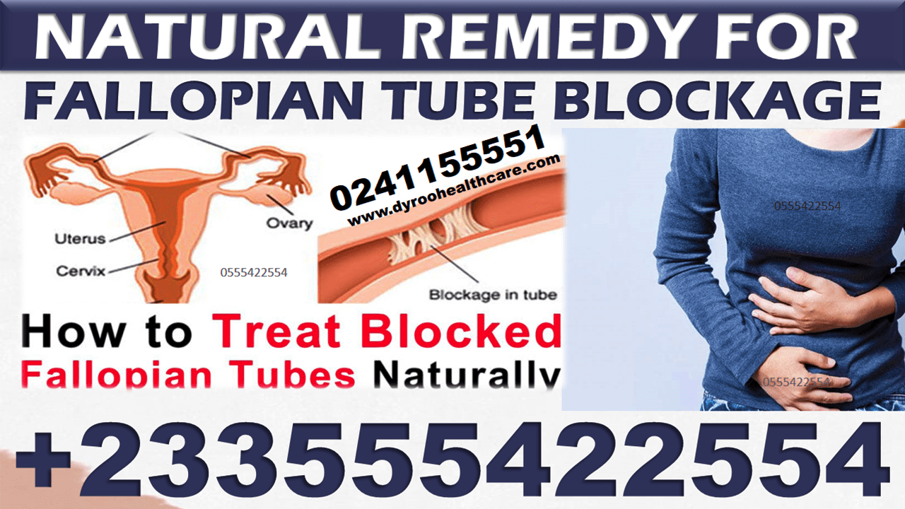 Natural Remedy For Fallopian Tube Blockage