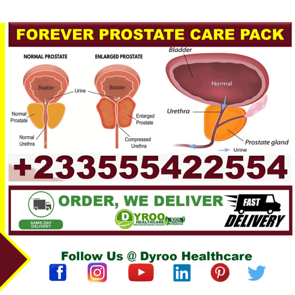 Best Natural Treatment for Prostate Disease in Ghana