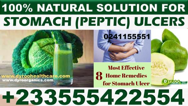 Best Herbal Medicine for Gastric Ulcer in Ghana