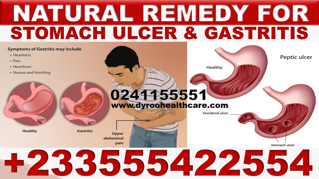 Natural Treatment for Gastric Ulcer in Ghana
