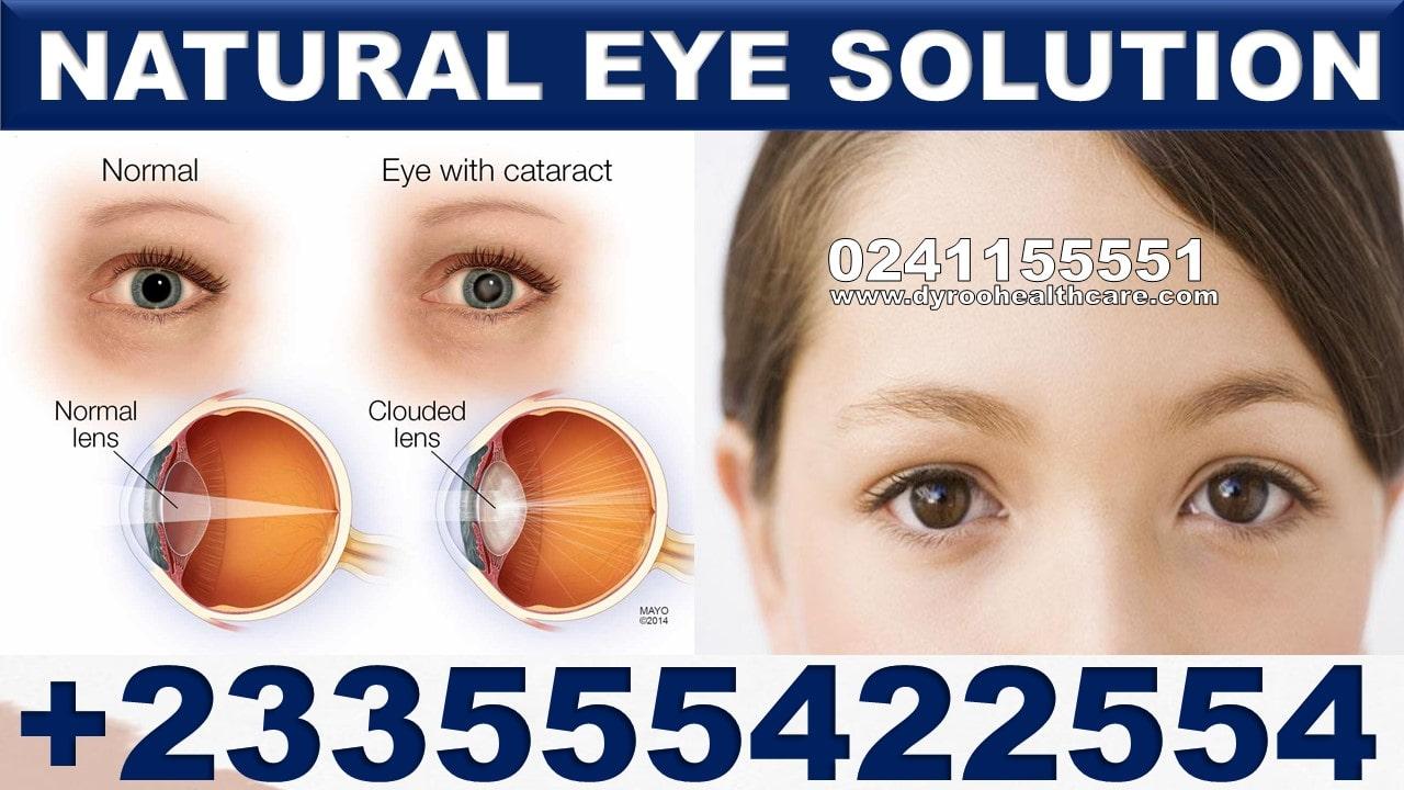 Best Vitamins for Eyes in Ghana
